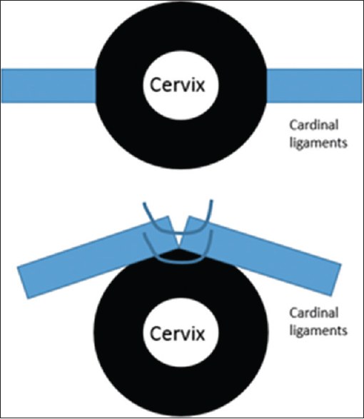 Figure 1: A schematic diagram of the operation. Freeing of cardinal ligaments (blue bars) from their lateral cervical attachments then transposition of both ligaments anterior to the cervix (black disc)
